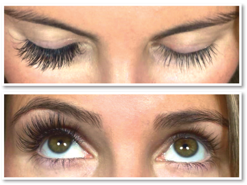 The Instant Non Invasive Eye Lift Could This Be The Answer To